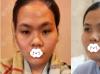 分享深圳回来医疗美容高卿豪脂肪面部填充术后2个月案例效果