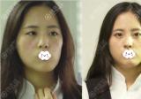 知道韩国李炳浍在深圳回来整形医院,天生歪鼻的我找他做了鼻子