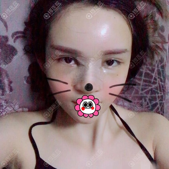 到广州懿美秀做鼻综合和自体脂肪填充全脸四天