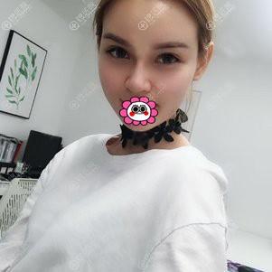 广州懿美秀做隆鼻自体脂肪填充脸部恢复25天效果