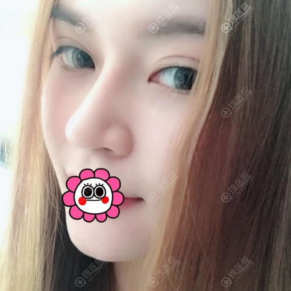 广州懿美秀做鼻综合和自体脂肪填充全脸恢复半年后案例