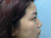 去福州台江找马美洲同时做了双眼皮和隆鼻手术感觉自己好勇敢