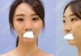 看于立民鼻综合案例效果图了解佛山佳丽整形美容医院怎么样!