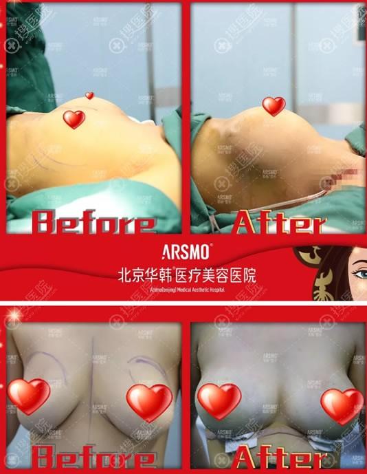 北京华韩余恩旭假体隆胸案例