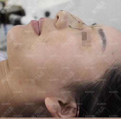 北京柏丽李劲良做驼峰鼻手术过程