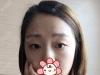 延安大学咸阳医院整形科王埴铖做的切开双眼皮让人疯狂打CALL