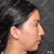 北京哪家医院驼峰鼻矫正术做得好,柏丽李劲良做驼峰鼻手术过程