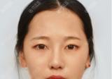 感觉找扬州美贝尔张成春做完全切双眼皮后眼睛看起来有神多了