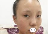 我是先找黑龙江哈尔滨瑞丽杨永胜做的鼻综合,然后才割的双眼皮