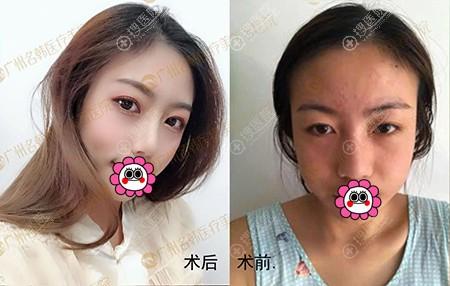 广州名韩孙晓捷鼻综合术前术后对比