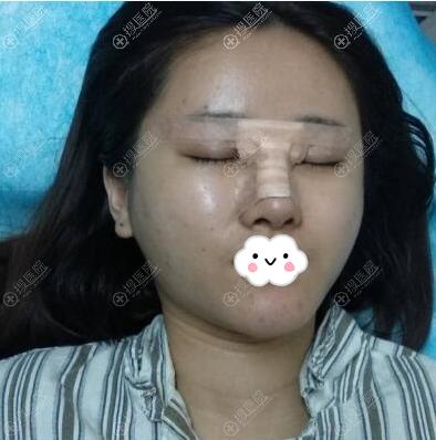 厦门华美陈运生隆鼻术后即刻照片