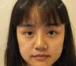 我的下颌角磨骨日记:看重庆爱思特袁伟为我打造的精致小v脸