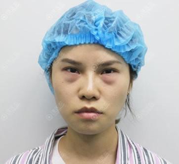 北京紫洁医美做去眼袋前