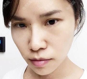 北京紫洁整形不开刀去眼袋案例