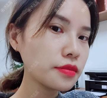 北京紫洁俪方不开刀去眼袋案例