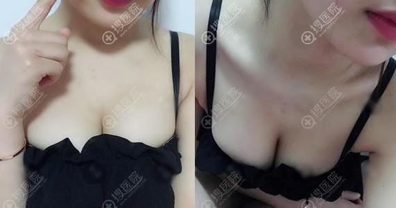 锦州斯美诺耿成虎假体隆胸案例