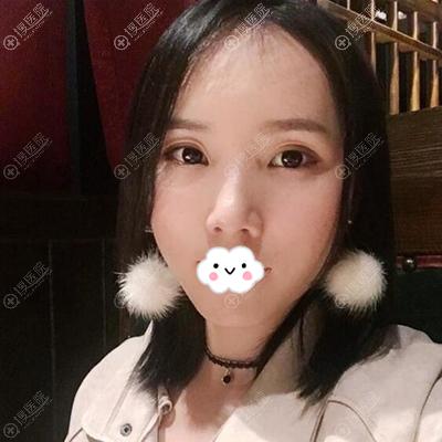 深圳美莱徐占峰自体脂肪面部二次填充一个月