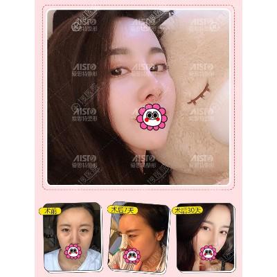 重庆爱思特鼻综合恢复案例