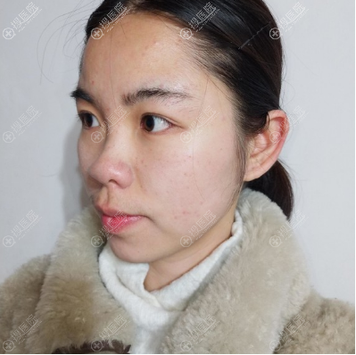 在上海美联臣做隆鼻术前照片