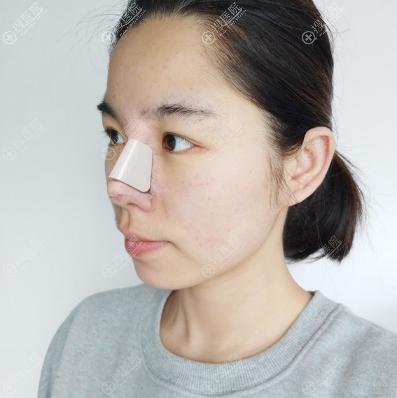 刘先超做的肋软骨隆鼻术后4天图片