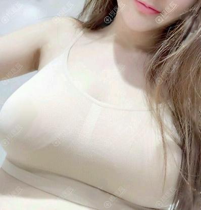 深圳南雅自体脂肪丰胸术后6天