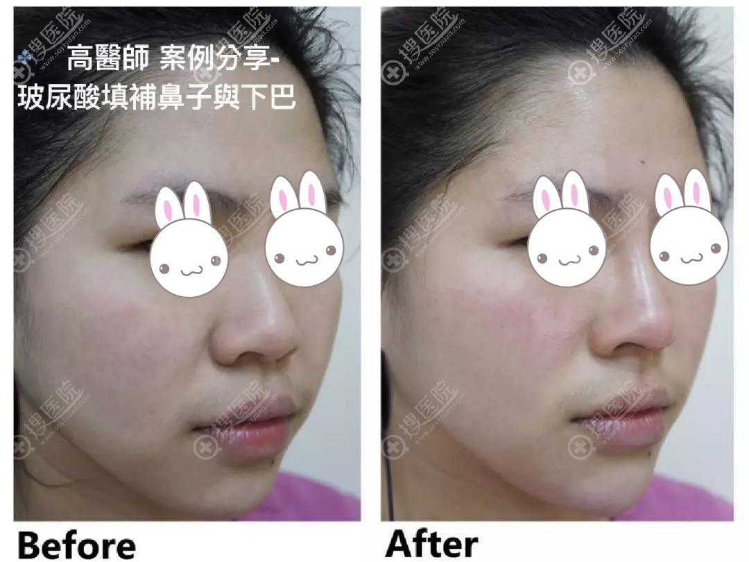 高弘恩注射玻尿酸填充鼻子下巴前后对比