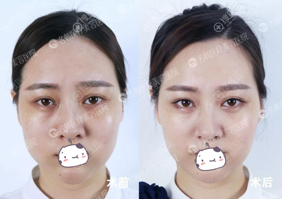 王玉燕注射肉毒素瘦脸前后对比