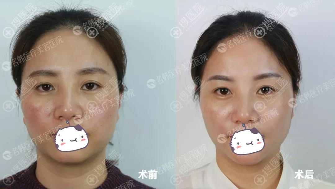 王玉燕注射玻尿酸去法令纹丰下巴前后对比效果