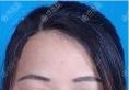 我不光找郑大二附院李钢做了下颌角整形手术还做了双眼皮