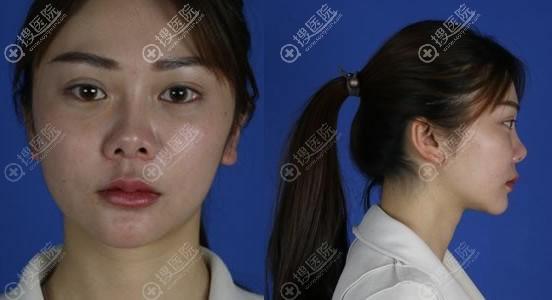 昆明艺星做隆鼻失败修复术前
