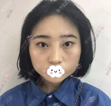 光纤溶脂瘦脸术前照片