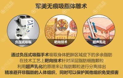 广州军美吸脂体雕术