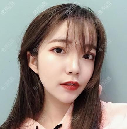 兰州韩美整形隆鼻和割双眼皮案例