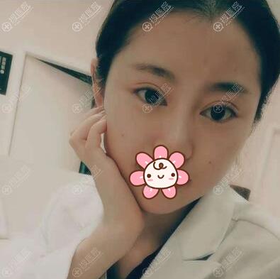 成都星范刘向文切开双眼皮术后3个月恢复图