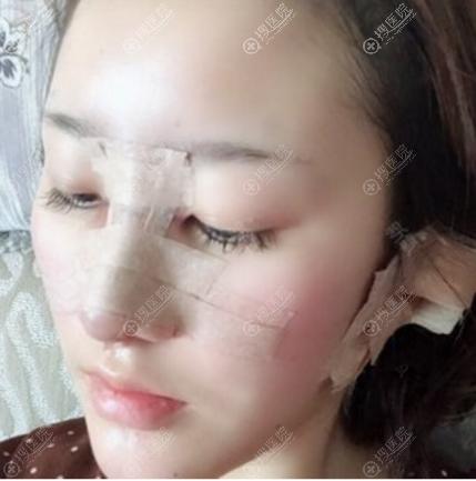 上海天大整形医院鼻子修复术后5天