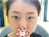 成都星范刘向文给我做了双眼皮开眼角,术后3个月恢复效果图分享