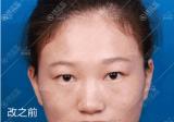 单眼皮肿泡眼花8千找深圳美莱肖锋做双眼皮上睑下垂矫正手术