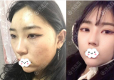 包子脸在深圳回来整形美容医院做了面部吸脂后瘦脸成功
