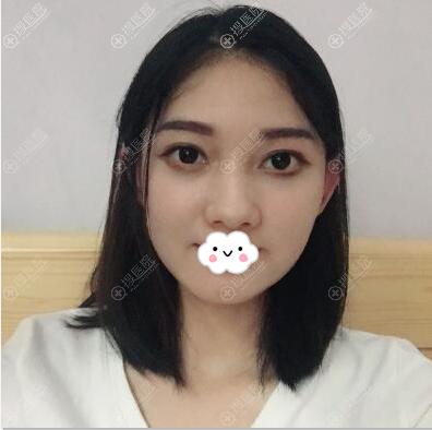 深圳美芮(原雅唯)王权面部线雕吸脂术后7天效果