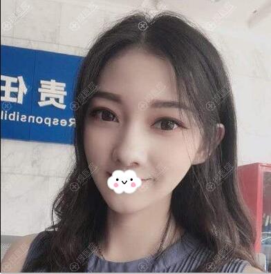 深圳美芮王权线雕提升术后半年效果