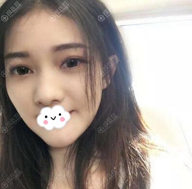 深圳美芮王权线雕面部吸脂术后6个月效果