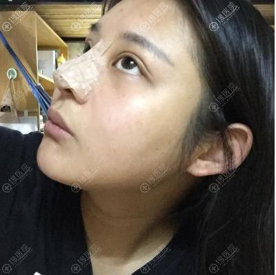 鼻综合隆鼻术后三天侧面照片