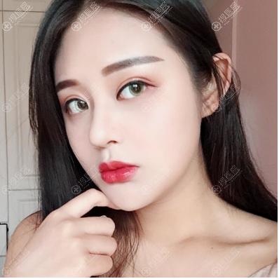 石家庄雅芳亚刘莎莎做的隆鼻案例图