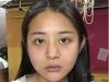 朋友说我找石家庄雅芳亚刘莎莎做的鼻综合隆鼻效果比她的还好看