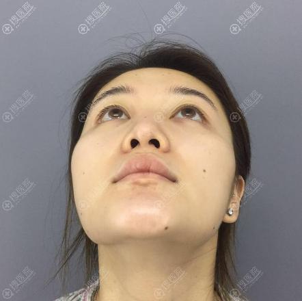 重庆铂生隆鼻术前照片