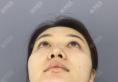 通过我的脂肪填充和隆鼻子案例来了解重庆铂生杜亚旭医生怎么样