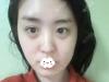 深圳回来韩国眼修复大师朴相炫给我做的双眼皮修复手术效果展示