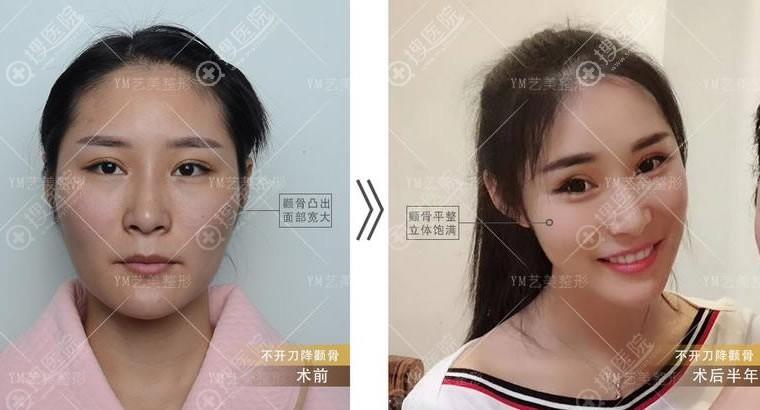 北京艺美王东不开刀降颧骨案例