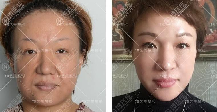 北京艺美王东自体脂肪填充失败修复案例