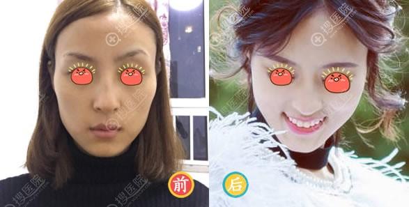 北京艺美王东颧骨降低手术案例